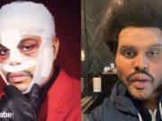 The Weeknd cirugía